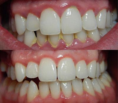 Mejores irrigadores dentales capacidad de limpieza